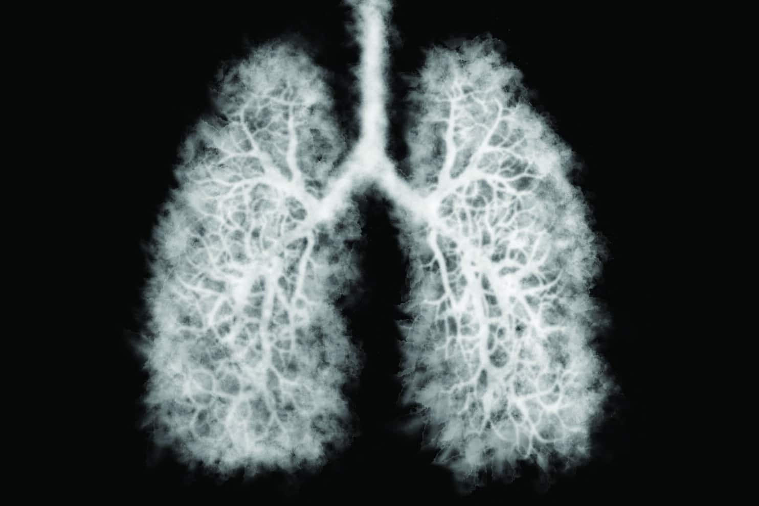Illustration of a toxic smoke in Lung